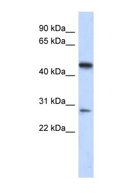 Western blot - C13orf31 antibody (ab87684)