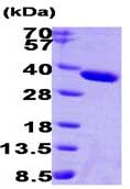 SDS-PAGE - ESD protein (His tag) (ab87688)