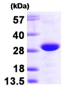 SDS-PAGE - RRAS2 protein (His tag) (ab87714)