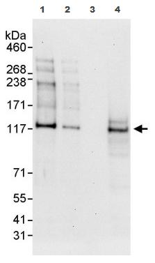 Western blot - Transcription termination factor 1 antibody (ab87726)