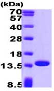 SDS-PAGE - Profilin 1 protein (Human) (ab87760)