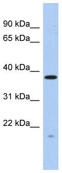 Western blot - RWDD2A antibody (ab87779)