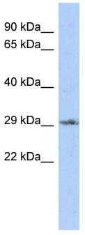 Western blot - Dlx1 antibody (ab87780)