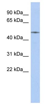 Western blot - ETS2 antibody (ab87783)