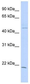 Western blot - CIB3 antibody (ab87784)