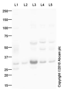 Western blot - Aquaporin 1 antibody (ab87845)
