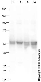 Western blot - Cytokeratin 8 antibody (ab87883)