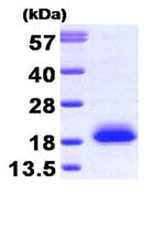 SDS-PAGE - VILIP1 protein (Human) (ab87893)