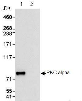 Immunoprecipitation - PKC alpha antibody (ab87920)