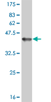 Western blot - IRE1 antibody [3D1] (ab87964)