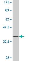 Western blot - CD130 (gp130) antibody (ab87969)