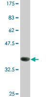 Western blot - LIM Kinase 1 antibody (ab87971)