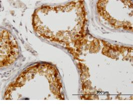 Immunohistochemistry (Formalin/PFA-fixed paraffin-embedded sections) - CITED1 antibody (ab87978)
