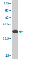 Western blot - CITED1 antibody (ab87978)