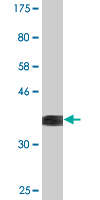 Western blot - NFIX antibody (ab87981)