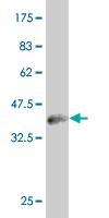 Western blot - PHF1 antibody [2G7] (ab87985)