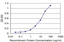 ELISA - PHF1 antibody [2G7] (ab87985)