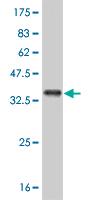 Western blot - ABL2 antibody [5C6] (ab87987)