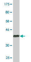 Western blot - ACAA1 antibody [3F11] (ab87988)