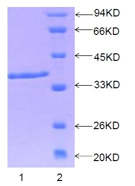 SDS-PAGE - CKS1 protein (Human) (ab88046)