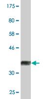 Western blot - ALDH9A1 antibody (ab88059)