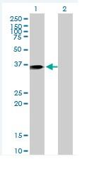 Western blot - Annexin A1 antibody [2D11] (ab88060)