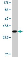 Western blot - Anti-Caspase-10 [2E7] antibody (ab88066)