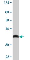 Western blot - CBR3 antibody [1G8] (ab88068)
