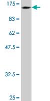 Western blot - DDX11 antibody [3C1] (ab88072)