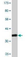 Western blot - PPP2R5D antibody (ab88075)
