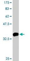 Western blot - CCK4 antibody (ab88077)