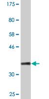 Western blot - PYGM antibody (ab88078)