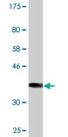 Western blot - SULT2B1 antibody (ab88085)