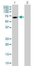 Western blot - RGS6 antibody (ab88086)