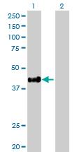 Western blot - HLA E antibody (ab88090)