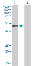Western blot - Anti-Cytohesin 1 antibody (ab88092)