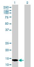 Western blot - GRIM19 antibody (ab88094)