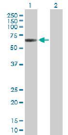 Western blot - SOCS5 antibody (ab88096)