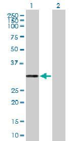 Western blot - PR3 antibody (ab88097)