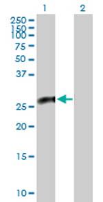 Western blot - SIAH Interacting Protein antibody (ab88103)