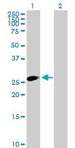 Western blot - RNF35 antibody (ab88109)