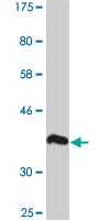 Western blot - POTEH antibody (ab88111)
