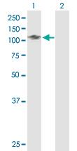 Western blot - BCOR antibody (ab88112)