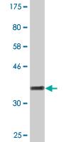 Western blot - MORC1 antibody (ab88113)