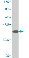 Western blot - T-bet / Tbx21 antibody (ab88114)