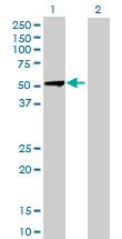Western blot - Hsp47 antibody (ab88115)