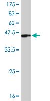 Western blot - IRAK4 antibody (ab88124)
