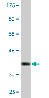 Western blot - UPB1 antibody (ab88136)