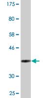 Western blot - Syntaxin 18 antibody (ab88140)