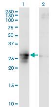 Western blot - FAM3B antibody (ab88142)